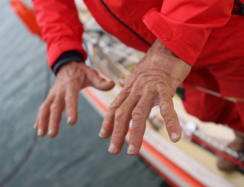 Istvan's hands
